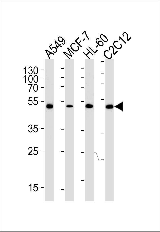 V1a Receptor Antibody (MA5-18115)