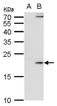 Enterovirus 71 3C Antibody (MA5-18283) in Western Blot