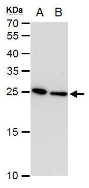 TPI1 Antibody (MA5-18284) in Western Blot