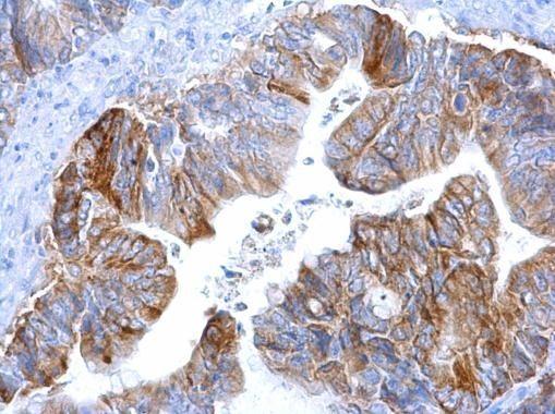 MCT1 Antibody (MA5-18288) in Immunohistochemistry (Paraffin)