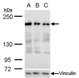 RRBP1 Antibody (MA5-18289) in Western Blot