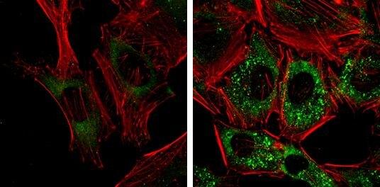 CALCOCO2 Antibody (MA5-18293) in Immunofluorescence