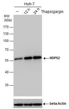 CALCOCO2 Antibody (MA5-18293) in Western Blot