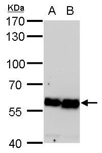 COPD Antibody (MA5-18294) in Western Blot
