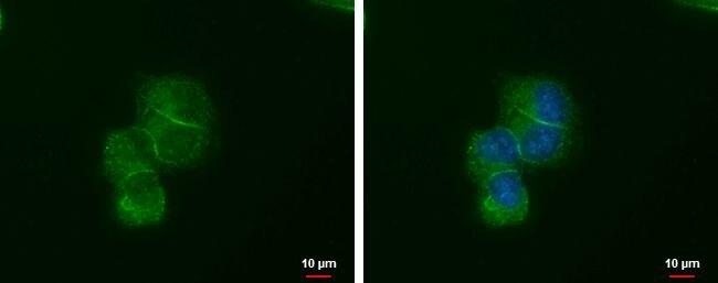 LIN7A Antibody (MA5-18298) in Immunofluorescence