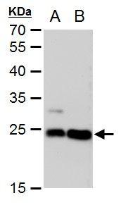 LIN7A Antibody (MA5-18298) in Western Blot