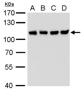 CAS Antibody (MA5-18303) in Western Blot