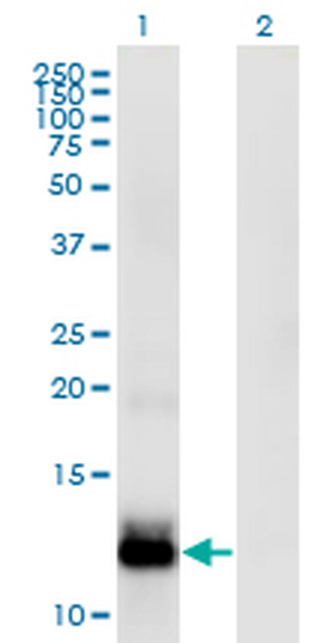 WFDC5 Antibody (MA5-23092)