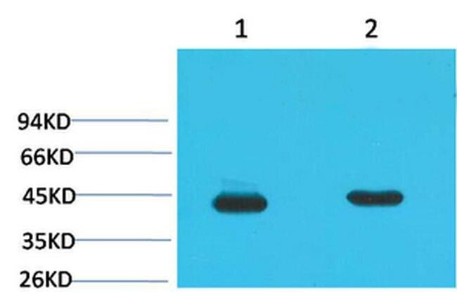 HAO1 Antibody (MA5-24384) in Western Blot
