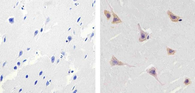 ALK Antibody (MA5-11460)
