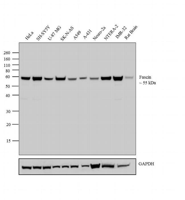 Fascin Antibody (MA5-11483) in Western Blot
