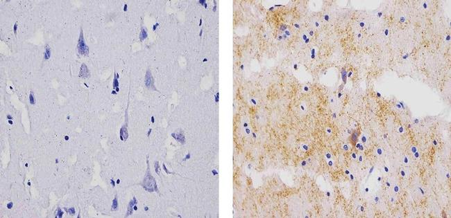 Synaptophysin Antibody (MA5-11575) in Immunohistochemistry (Paraffin)