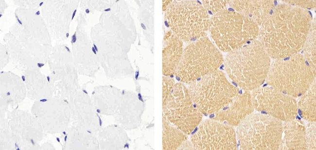 Actin Muscle Antibody (MA5-11874) in Immunohistochemistry (Paraffin)
