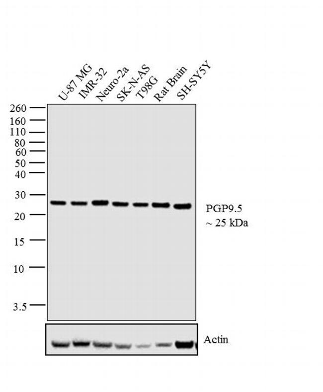PGP9.5 Antibody (MA5-12371) in Western Blot