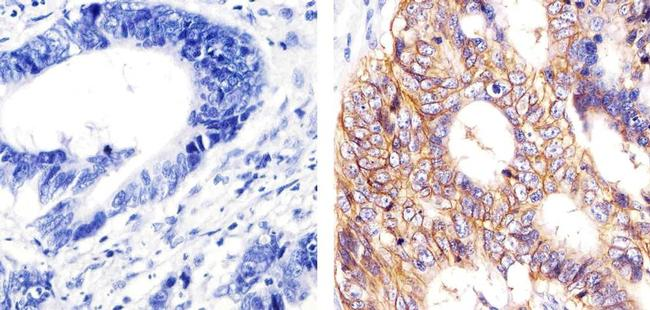 EpCAM Antibody (MA5-12442)