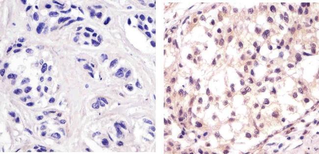p53 Antibody (MA5-12453) in Immunohistochemistry (Paraffin)