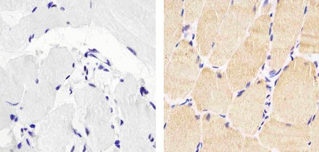 Skeletal Muscle Actin Antibody (MA5-12542) in Immunohistochemistry (Paraffin)