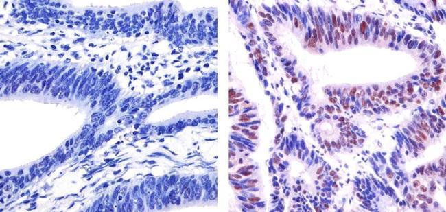 p53 Antibody (MA5-12571) in Immunohistochemistry (Paraffin)
