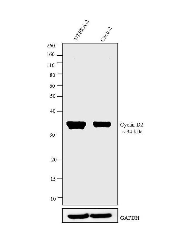 Cyclin D2 Antibody (MA5-12731) in Western Blot
