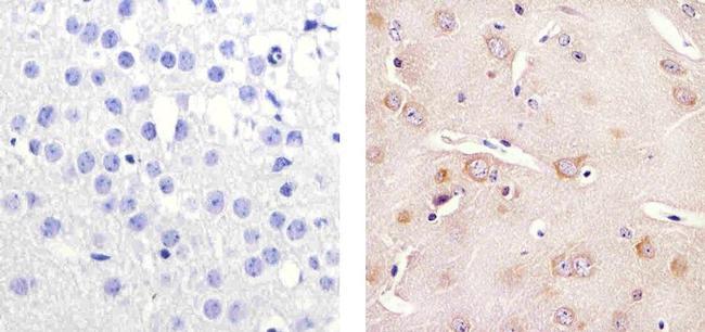 Tau Antibody (MA5-12808) in Immunohistochemistry (Paraffin)