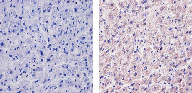 VEGF Antibody (MA5-13182) in Immunohistochemistry (Paraffin)