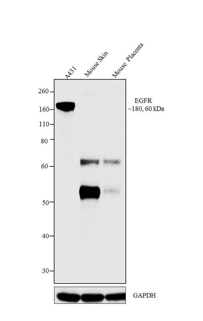 EGFR Antibody (MA5-13269) in Western Blot