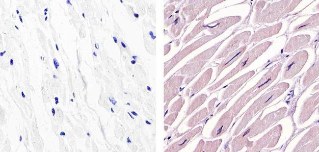 c-Abl Antibody (MA5-14398) in Immunohistochemistry (Paraffin)