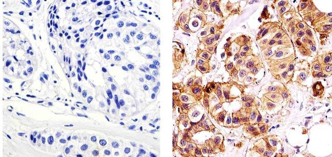 E-cadherin Antibody (MA5-14458) in Immunohistochemistry (Paraffin)