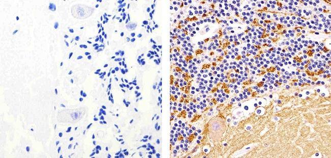 Synaptophysin Antibody (MA5-14532) in Immunohistochemistry (Paraffin)