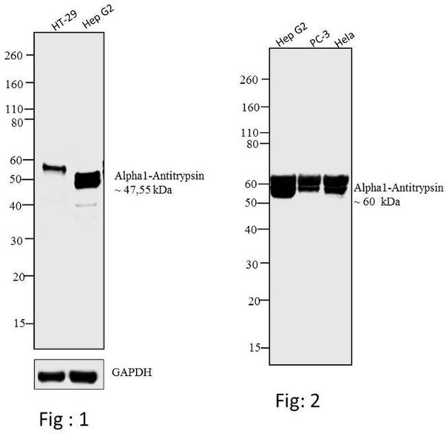 alpha-1 Antitrypsin Antibody (MA5-14661)