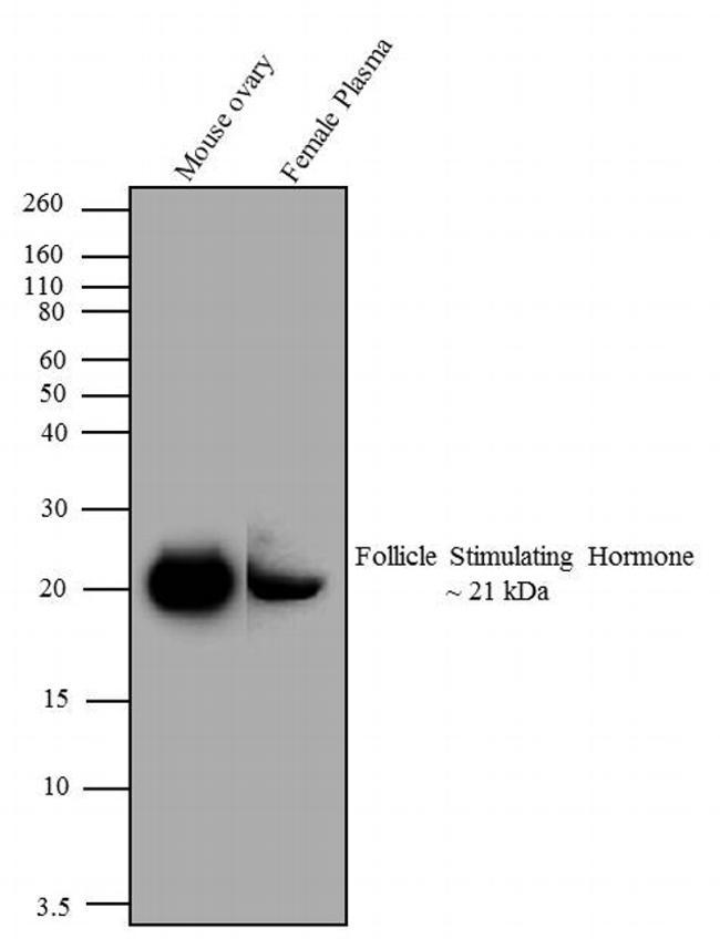 Follicle Stimulating Hormone Antibody (MA5-14695) in Western Blot
