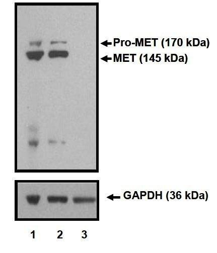 c-Met Antibody (MA5-15198) in Western Blot