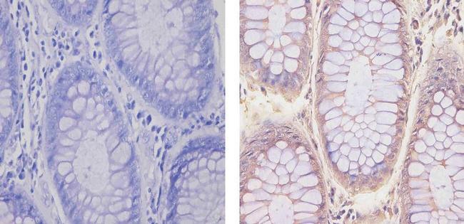 Glucocorticoid Receptor Antibody (MA5-15801) in Immunohistochemistry (Paraffin)