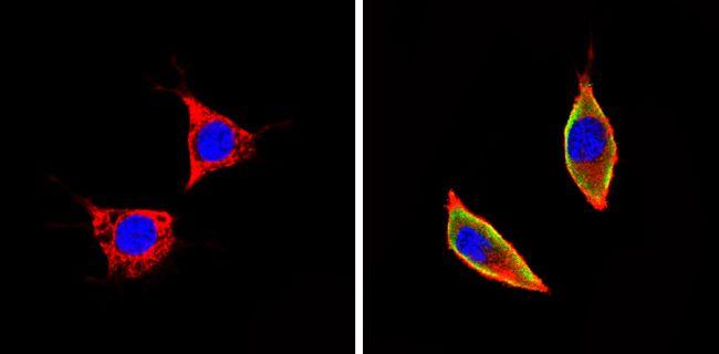 ICAM-1 Antibody (MA5405) in Immunofluorescence