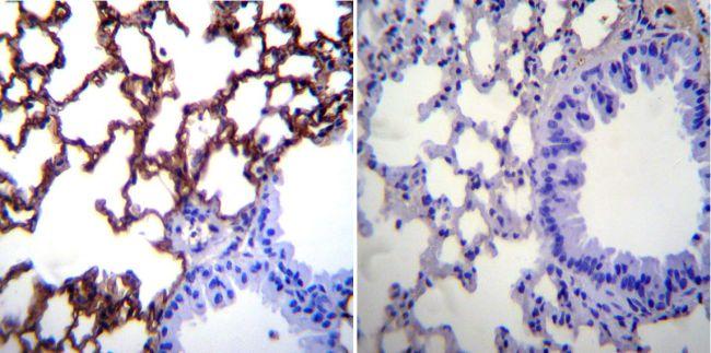 ICAM-1 Antibody (MA5405) in Immunohistochemistry