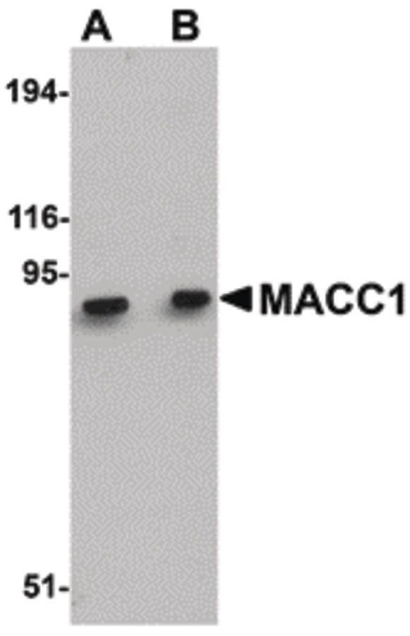 MACC1 Antibody (PA5-20758) in Western Blot