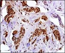 MAGEA4 Antibody (PA5-13153) in Immunohistochemistry