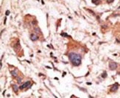 MAGED1 Antibody (PA5-13162) in Immunohistochemistry