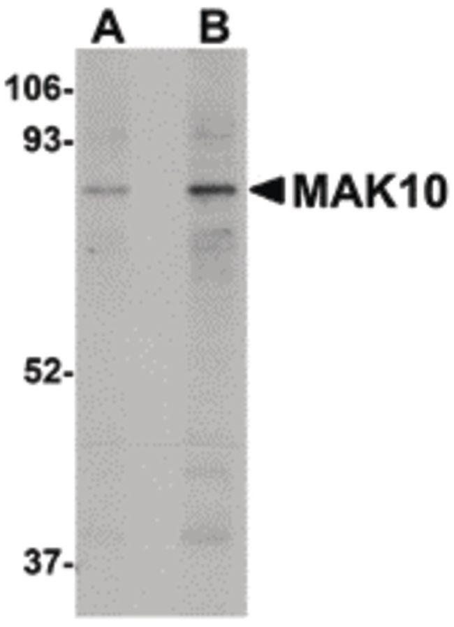 MAK10 Antibody (PA5-20784) in Western Blot