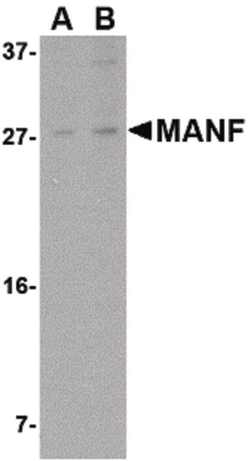ARMET Antibody (PA5-20432) in Western Blot