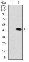 LC3B Antibody (MA5-17115) in Western Blot