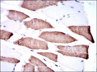 MEK7 Antibody (MA5-15925) in Immunohistochemistry
