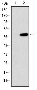 MEKK2 Antibody (MA5-15908) in Western Blot
