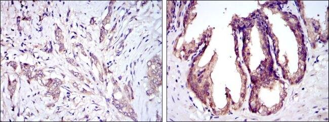 ASK1 Antibody (MA5-15861) in Immunohistochemistry