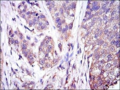 ERK1 Antibody (MA5-15896) in Immunohistochemistry