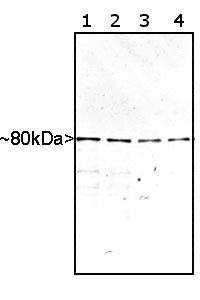 MARCKS Antibody (PA1-10021) in Western Blot