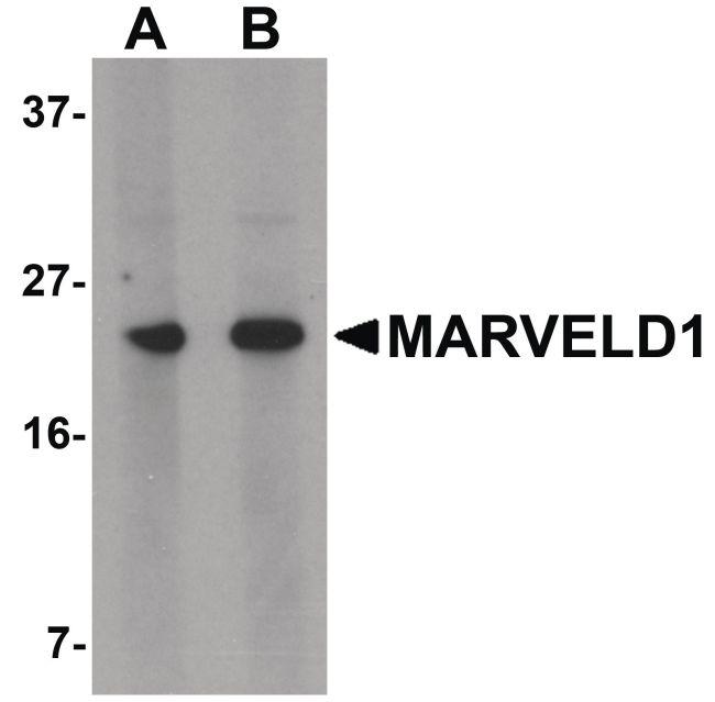MARVELD1 Antibody (PA5-20853) in Western Blot