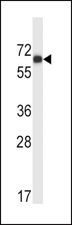 MATK Antibody (PA5-14785)
