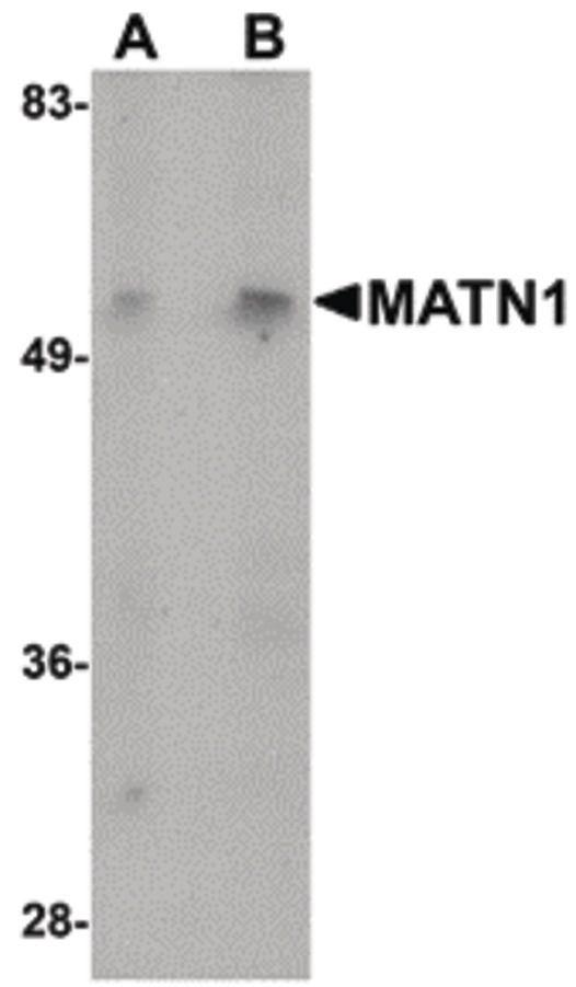 MATN1 Antibody (PA5-20725)