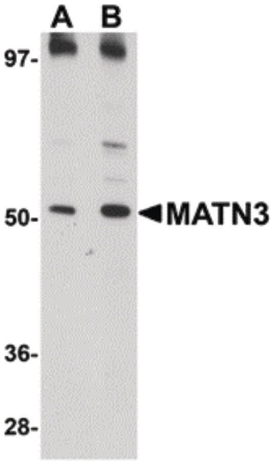 MATN3 Antibody (PA5-20726) in Western Blot